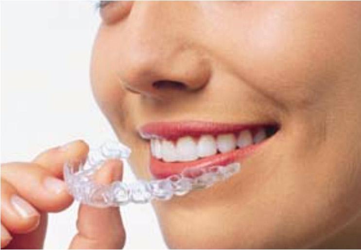 dentista-brasilia-df-tratamento-aparelhos-invisiveis-gratone